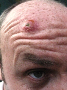 Mr Boil head